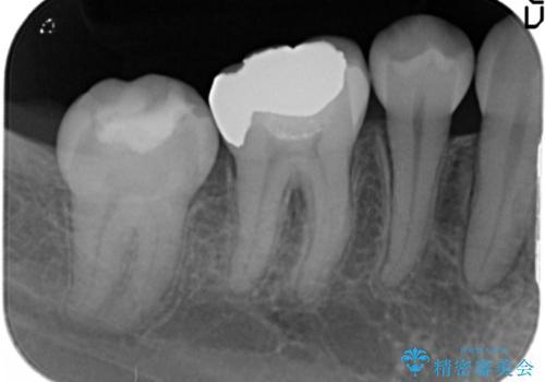 銀歯を目立たなくする セラミック治療 の治療前