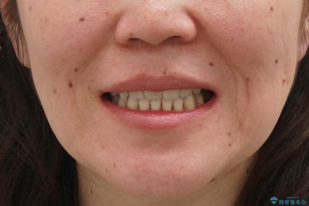 受け口 大人の矯正 セラミックで全体的に治療もの治療後(顔貌)