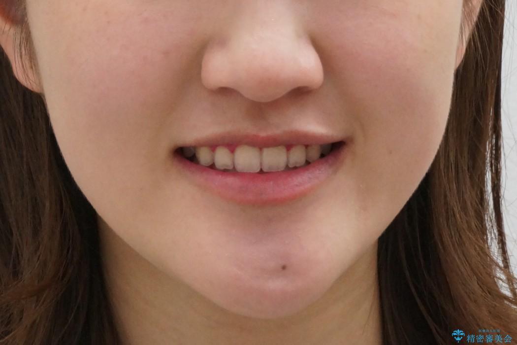 20代女性 受け口 手術をしなくても変わりますの治療後(顔貌)