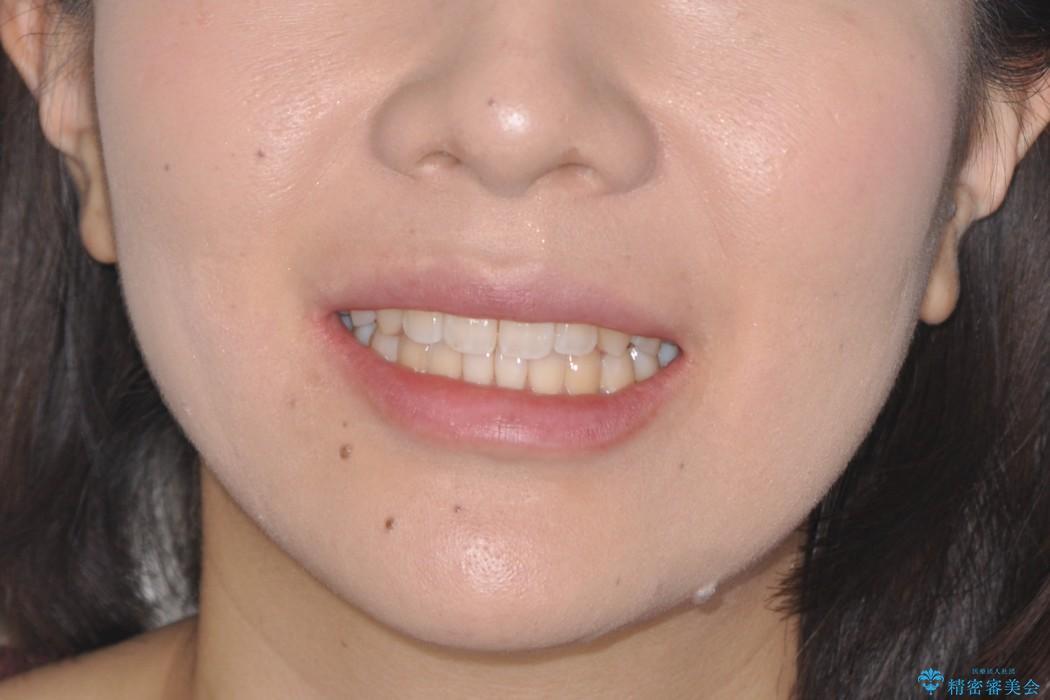 前歯の部分矯正 インビザラインエクスプレスパッケージの治療後(顔貌)