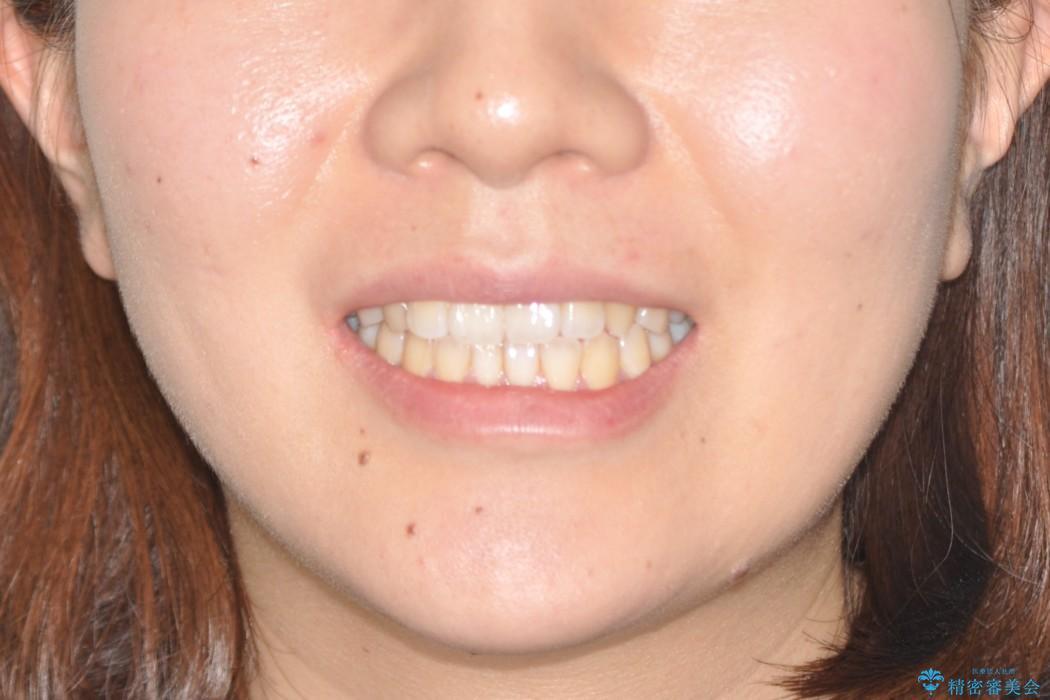前歯の部分矯正 インビザラインエクスプレスパッケージの治療前(顔貌)
