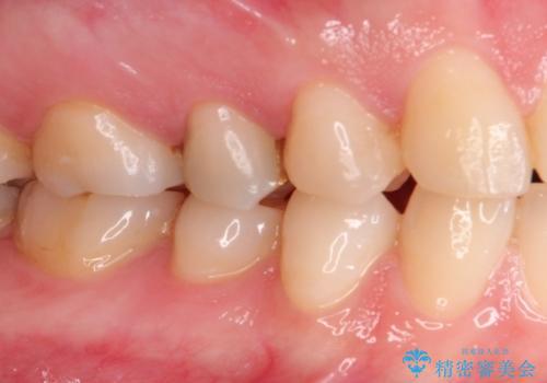 むし歯の再治療。セラミックインレーとゴールドインレーの治療後