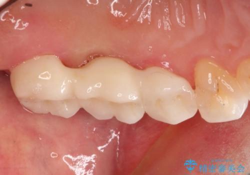 奥歯でも見た目にこだわりたい。ブリッジによる治療。の治療後