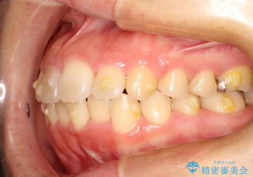 インビザラインinvisalignによる軽度ガタつきの歯列矯正治療の治療中