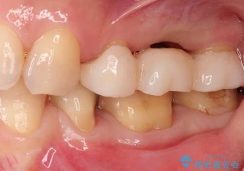 奥歯でも見た目にこだわりたい。ブリッジによる治療。の治療中