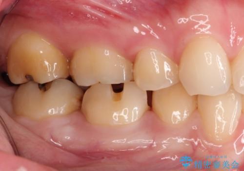 もう、むし歯になりたくない。精度の高いセラミックインレーの治療中