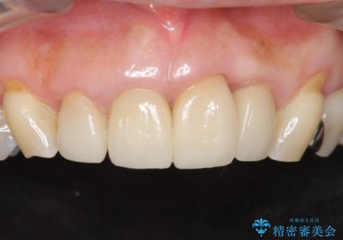 前歯をきれいにしたい 50代女性の治療後