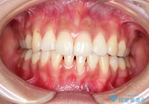 目立たない装置で前歯のデコボコを改善 リンガル装置の抜歯矯正の症例 治療後