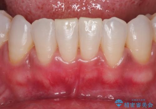 """""""レーザーを用いたガムピーリング"""" 黒ずんだ歯茎をキレイな歯茎への治療後"""