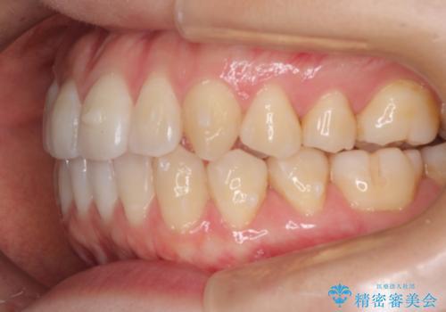 前歯の部分矯正 インビザラインエクスプレスパッケージの治療中
