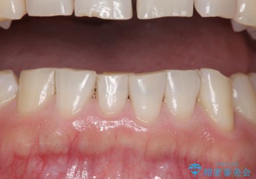 下顎前歯部のガタつきを部分矯正での治療前
