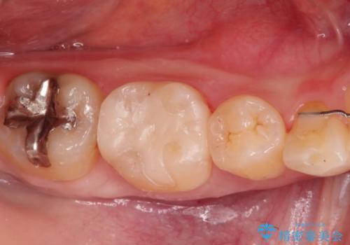 もう、むし歯になりたくない。精度の高いセラミックインレーの症例 治療後