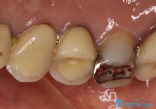 穴があいたクラウンのやり直しは根管治療からの治療前