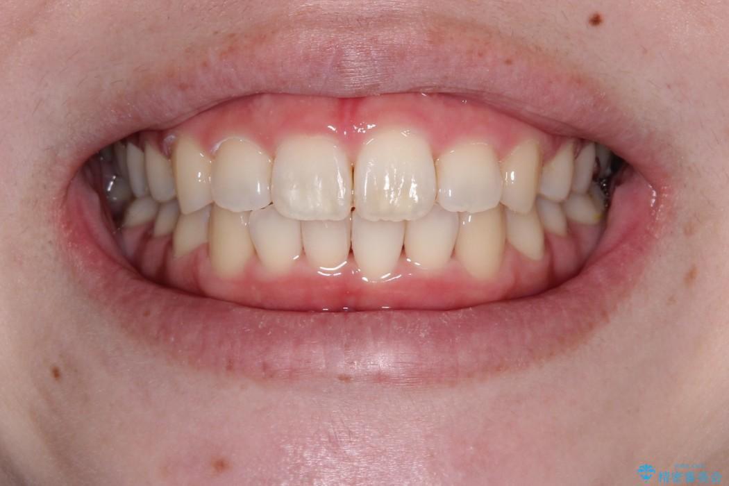 インビザラインinvisalignによる軽度ガタつきの歯列矯正治療の治療後(顔貌)