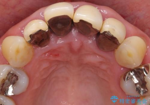 前歯をきれいにしたい 50代女性の治療前