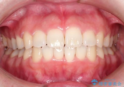 インビザラインinvisalignによる軽度ガタつきの歯列矯正治療の症例 治療後
