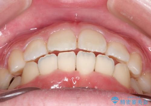 インビザラインinvisalignによる軽度ガタつきの歯列矯正治療の治療後
