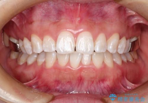 矯正中にPMTCとホワイトニングで歯を白くの治療後