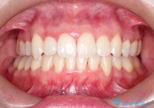 結婚式までに見栄えの良い歯並びにしてほしいの症例 治療後