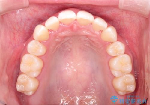 結婚式までに見栄えの良い歯並びにしてほしいの治療後