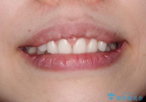 単純歯肉切除による歯のライン改善の治療後