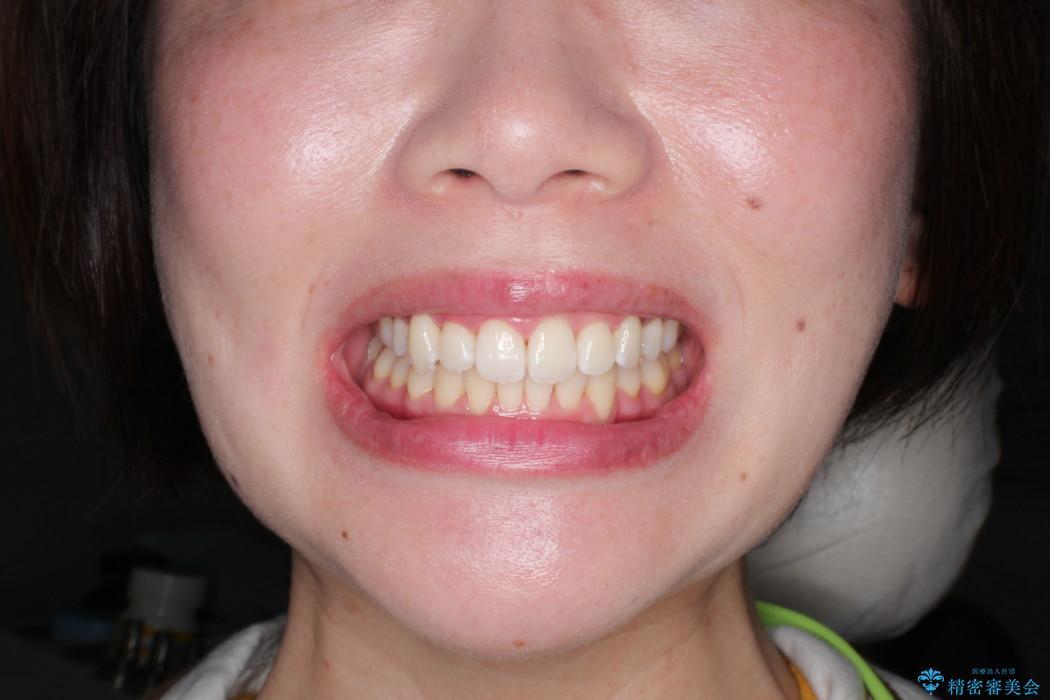 結婚式までに見栄えの良い歯並びにしてほしいの治療後(顔貌)