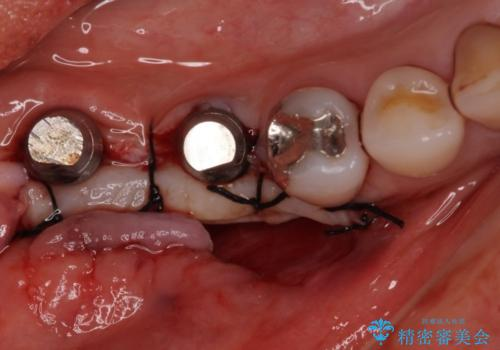 奥歯で咬めない インプラントによる咬合回復② 歯肉移植・補綴の治療中