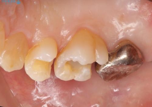銀歯をセラミックで白くの治療中