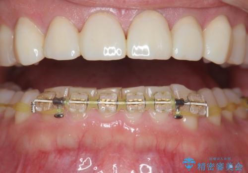 下顎前歯部のガタつきを部分矯正での治療中