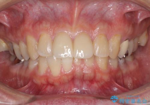前歯をきれいにしたい なるべく費用おさえての治療後