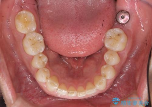 下顎前歯部のガタつきを部分矯正での治療後