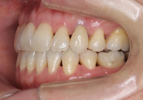 前歯のセラミッククラウン 犬歯に相当する部位に自然にの治療後