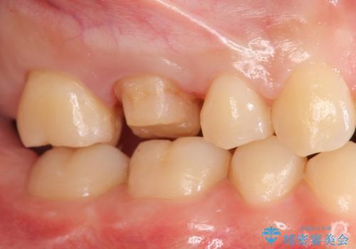 奥歯の歯の間の虫歯の治療 セラミッククラウンおよびセラミックインレーの治療中
