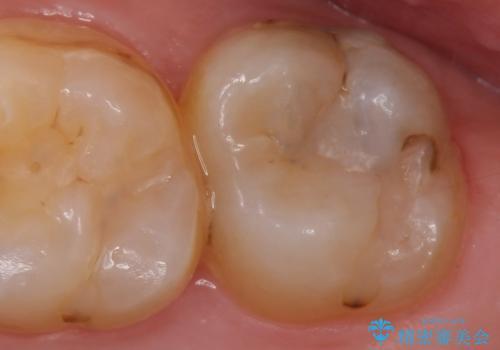 メタルボンドクラウン 虫歯治療の治療前
