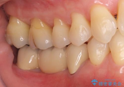 奥歯のブリッジを白く 矯正含めた総合治療で、歯周病、根の問題、一気に解決の治療後