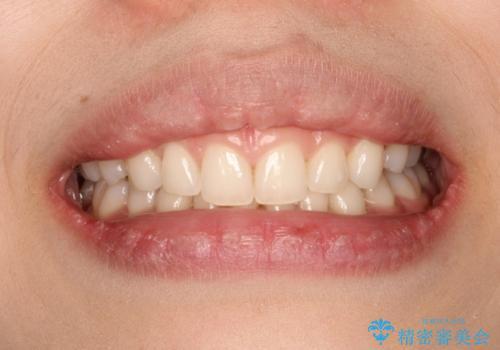 単純歯肉切除による歯のライン改善の治療前