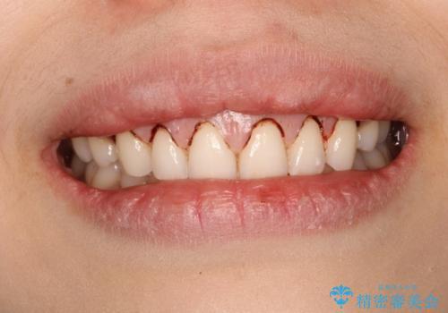 単純歯肉切除による歯のライン改善の治療中