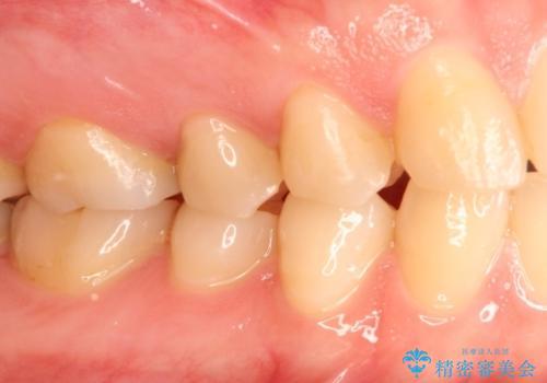 むし歯の再治療。セラミックインレーとゴールドインレーの治療前