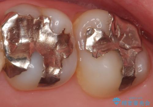 PGA(ゴールド)インレー 虫歯治療の治療前