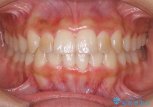 ガタガタの歯並びをインビザラインで美しくの症例 治療後