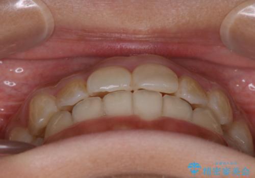 ガタガタの歯並びをインビザラインで美しくの治療後