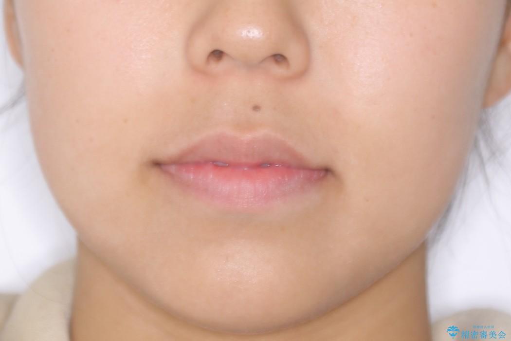 ガタガタの歯並びをインビザラインで美しくの治療後(顔貌)