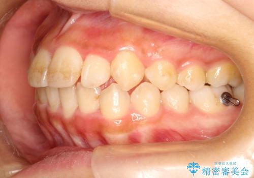 ガタガタの歯並びをインビザラインで美しくの治療中