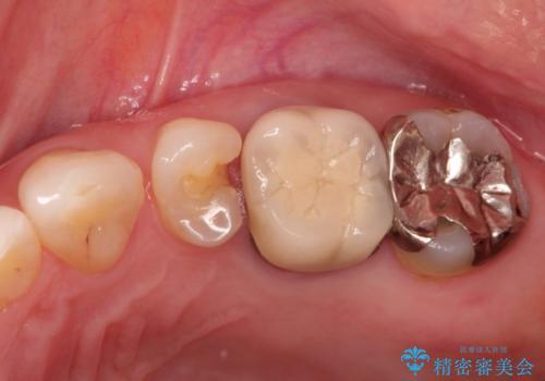 奥歯でも見た目にこだわりたい。ブリッジによる治療。の治療前