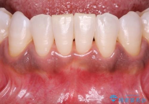 """""""レーザーを用いたガムピーリング"""" 黒ずんだ歯茎をキレイな歯茎への治療前"""