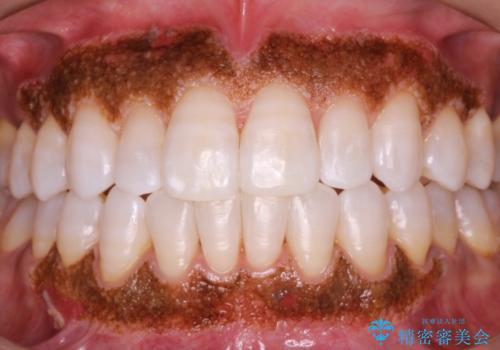 """""""レーザーを用いたガムピーリング"""" 黒ずんだ歯茎をキレイな歯茎への治療中"""