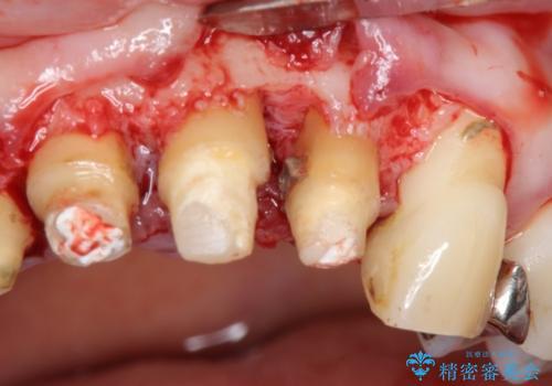 前歯をきれいにしたい 50代女性の治療中