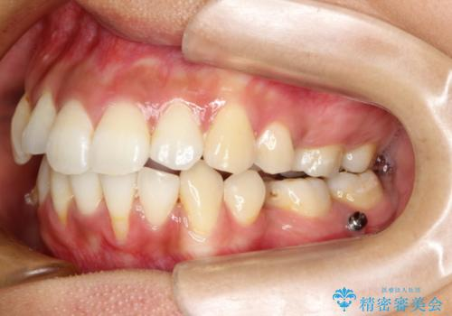 目立たない装置で前歯のデコボコを改善 リンガル装置の抜歯矯正の治療中