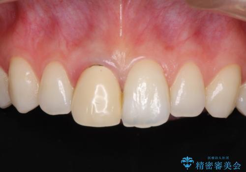変色した保険診療の前歯をオールセラミックできれいにの治療前