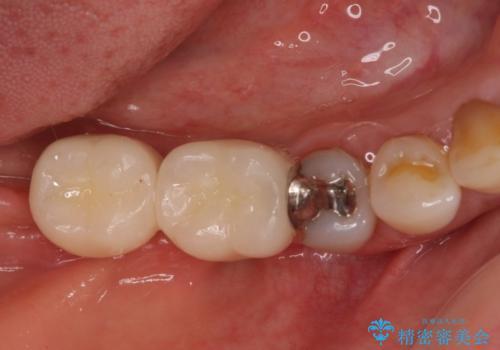 奥歯で咬めない インプラントによる咬合回復② 歯肉移植・補綴の治療後